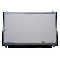 """HP - Écran LED tactile FHD SVA de 15,6"""" (39,6 cm) - CTO"""